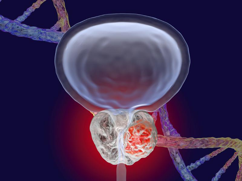 سرطان پروستات خوش خیم
