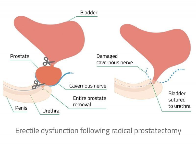 اختلال نعوظ پروستات