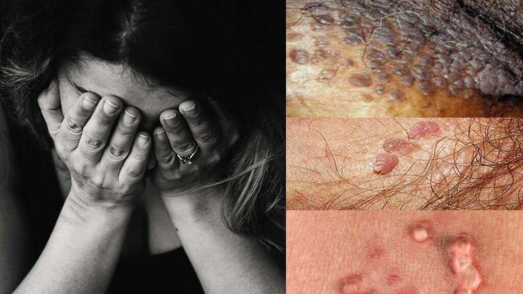 عوارض لیزر درمانی زگیل تناسلی