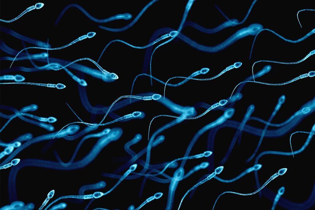 انزال معکوس یا پرتاب نشدن اسپرم