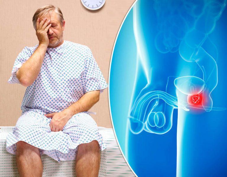 درمان بیوپسی پروستات